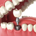 What You Need to Know About Dental Implants