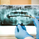 New Breakthrough Offers Hope Against Gum Disease