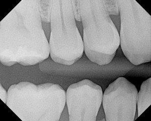 portland dental implants
