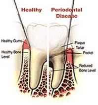 Portland OR periodontist
