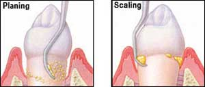 Periodontal Scaling And Root Planing Portland Family Periodontics